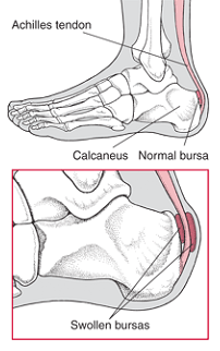 Bursitis in the Heel