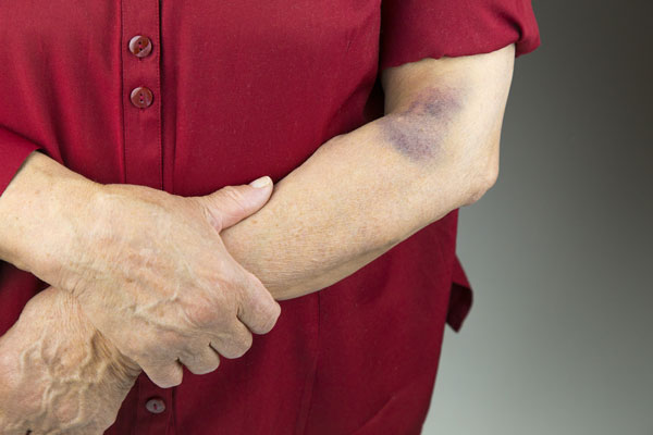 Bruise on man's elbow